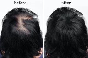Female Alopecia and Hair Loss Treatments