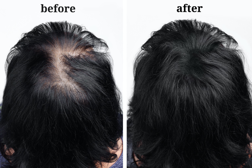 Female Alopecia and Hair Loss Treatments