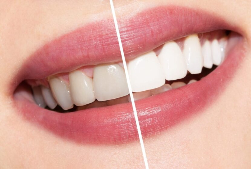 GET A WHITER SMILE IN THE TORONTO GTA AT ADVANCED WHITE TEETH WHITENING CLINIC