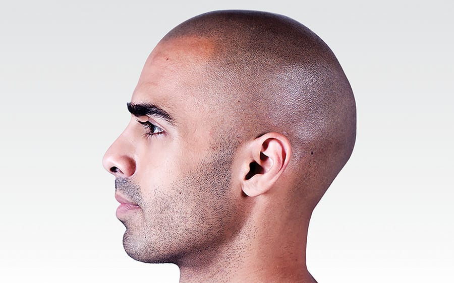 Is SMP® Scalp Micropigmentation For Me?