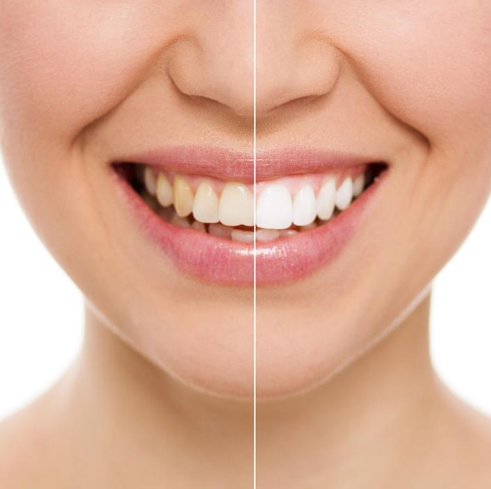 Toronto Laser Teeth Whitening: A Comprehensive Guide