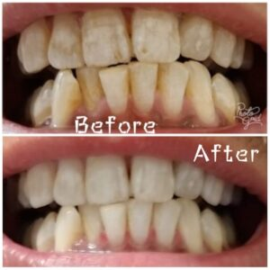 Which Foods to Skip to Avoid Stained Teeth